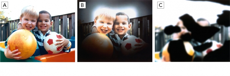 A: Normal vision, B: Severe glaucoma, C: Diabetic retinopathy