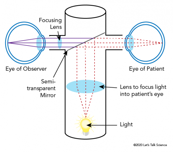 Parts and function of a basic ophthalmoscope